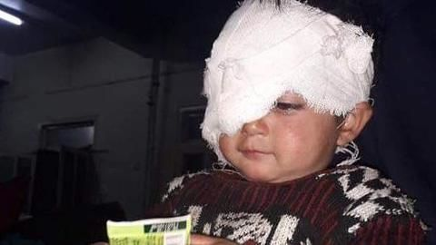 Why was the eyesight of 18 month old baby Hiba Jan snatched by pellets, asks JRL
